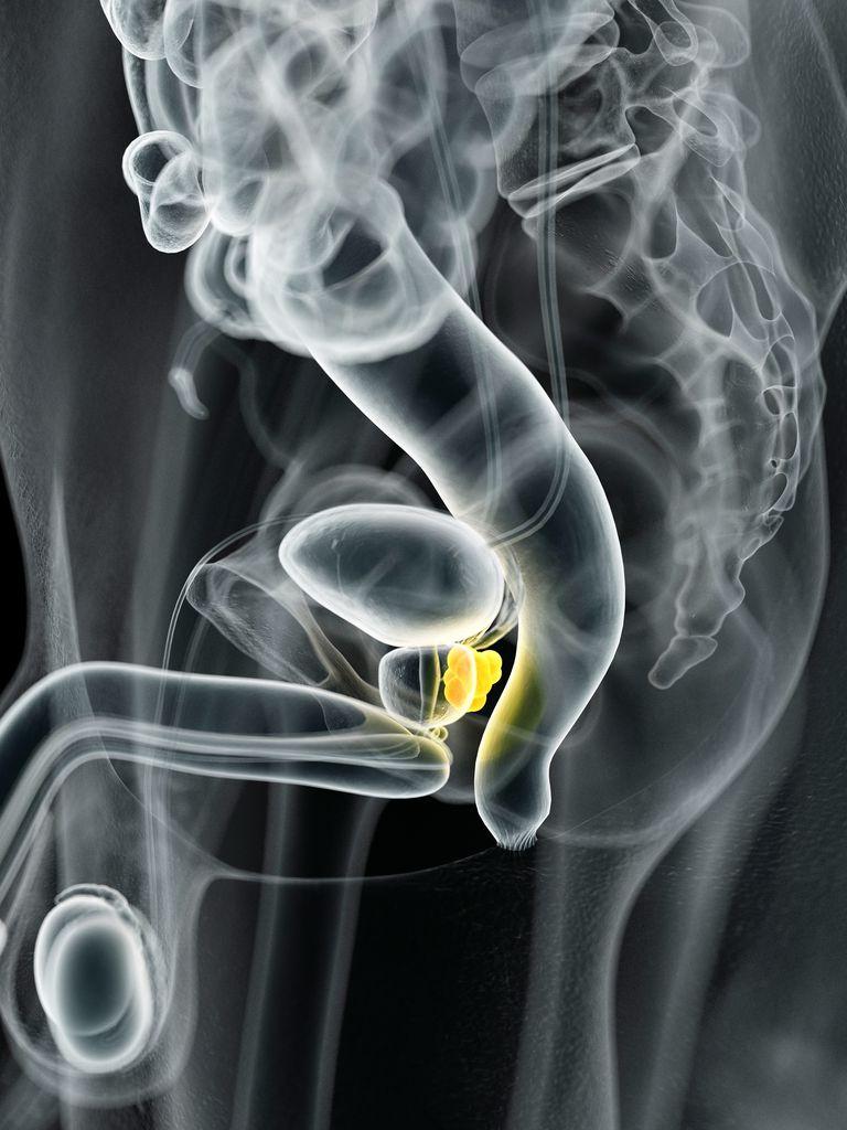 Cancer de prostata con psa normal