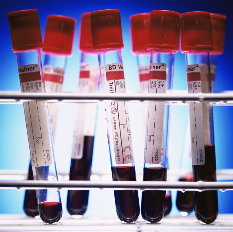 The Vectra DA Blood Test